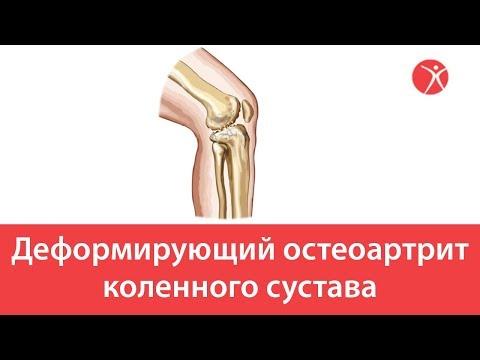 Деформирующий остеоартрит коленного сустава