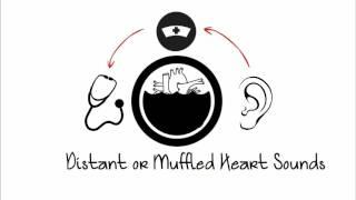 Cardiac Tamponade - Acute Cardiac Conditions