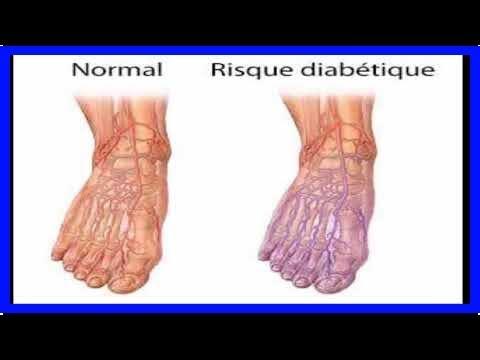 Les causes du diabète dinjections
