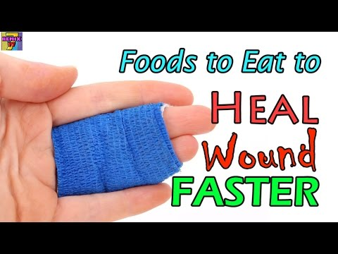 Video How To Heal Wounds Faster | Top 10 Naturally Healing Foods After Injury