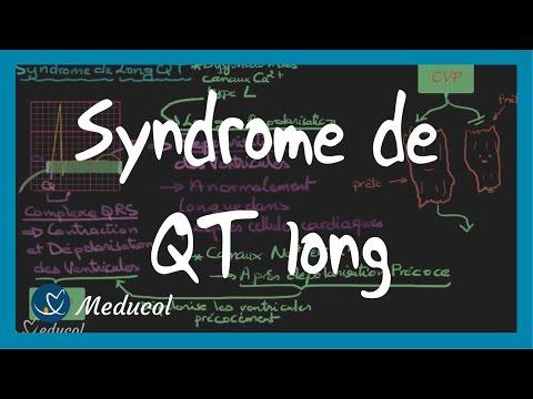 Video Syndrome du QT long et QT corrigé: ECG, étiologies et symptômes