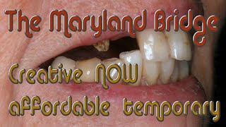 Same-Day Maryland Bridge For Missing Front Teeth