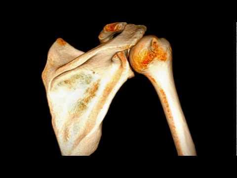 Uszkodzenie Hilla-Sachsa w niestabilności przedniej stawu ramiennego - CT