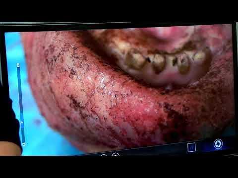 Хирургическое лечение рецессий десны в области зубов и имплантатов. Часть 26