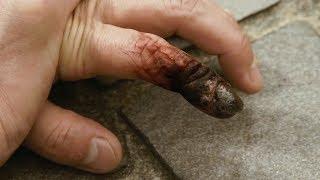 少年得了一种罕见怪病,只要用力过度,手指就会奇痛难忍!