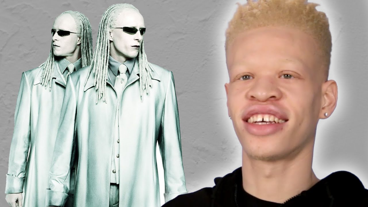 People With Albinism Review Albino Characters From Film thumbnail
