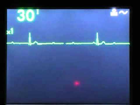 Izvršenje dijagnostici hipertenzivne bolesti