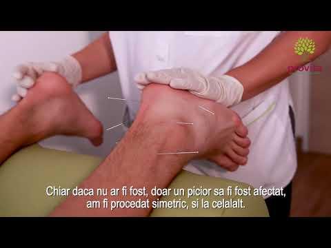 Care tratează artrita cotului
