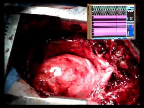 Video Ventricular Tachycardia