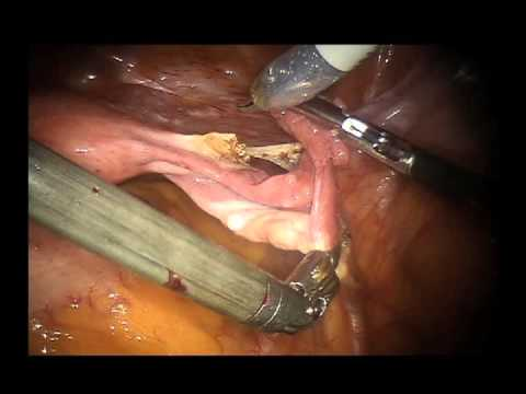 Robotic Supracervical Hysterectomy