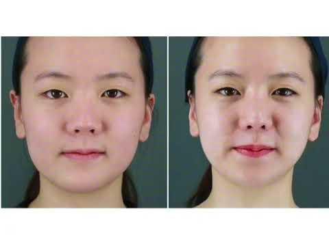 Face mask anti-kulubot paggamot para sa kumbinasyon ng balat