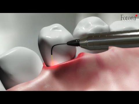 TwinLight® Periodontal Treatment