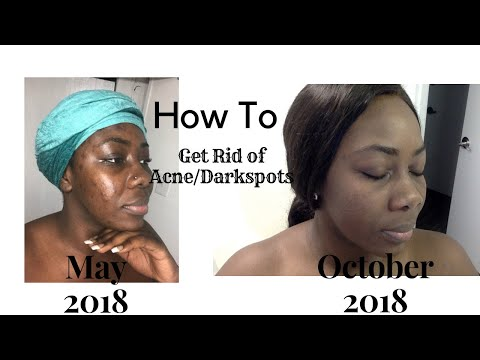 How to get rid of acne & dark spots | using Aveeno Products