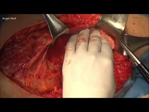 Endometrial cancer msi h