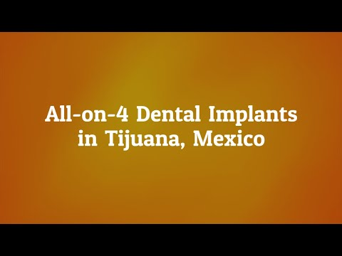Guide-To-All-On-4-Dental-Implants-in-Tijuana-Mexico