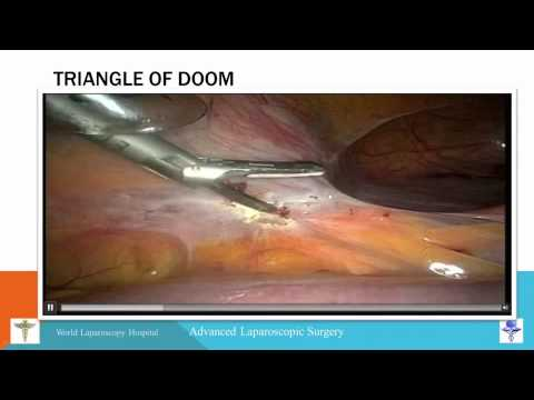 Laparoscopic Assisted Vaginal Hysterectomy