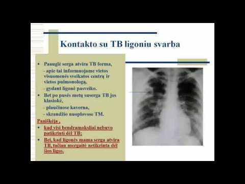 """Tuberkuliozės """"veidas"""" ir diagnostika – labai išsamiai"""