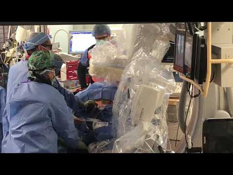 Video: Aortic heart value replacement at Holston Valley