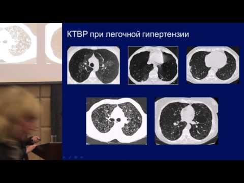 Причины заболевания гипертонией