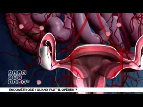 Médicaments pour lhypertension artérielle et de la puissance