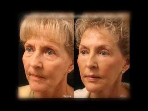 Типы операций по восстановлению зрения