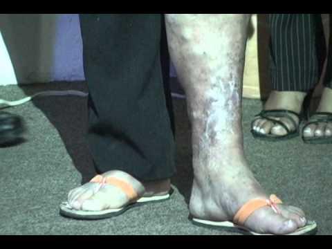 Il sanguinamento su una gamba varicosity