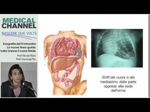 Controindicazioni di esercitare terapia in osteocondrosi lombare