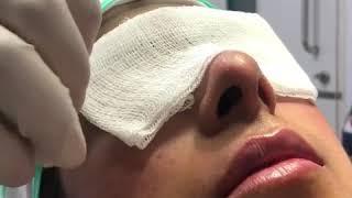 Lip Enhancement at SkinQure
