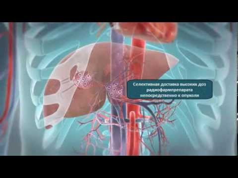 Гепатит с и как с ним бороться