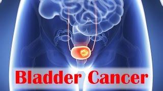 Bladder Cancer Solutions