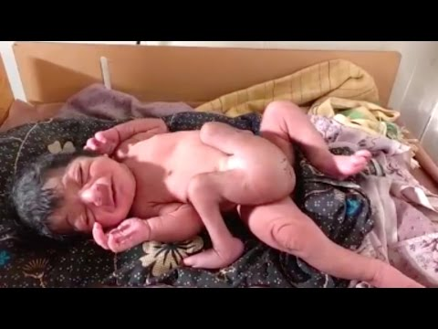Baby Born With Four Legs And Two Genitals