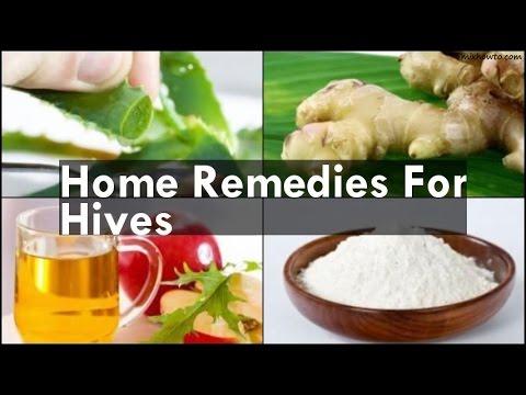 Video Home Remedies For Hives