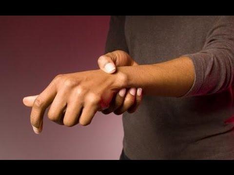 Болят суставы рук и ног что делать ! Как лечить боли в суставах - №20 Артрит. Артроз