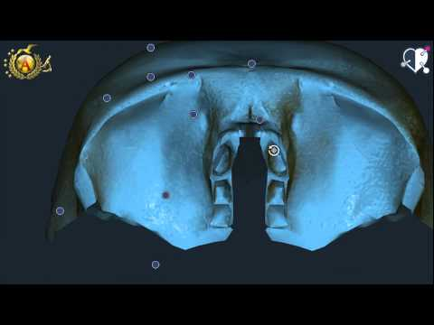 Tipi di privare la foto sul trattamento per la schiena
