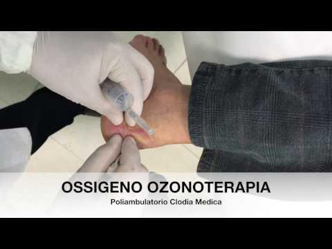 Un intervento chirurgico per contratture articolari