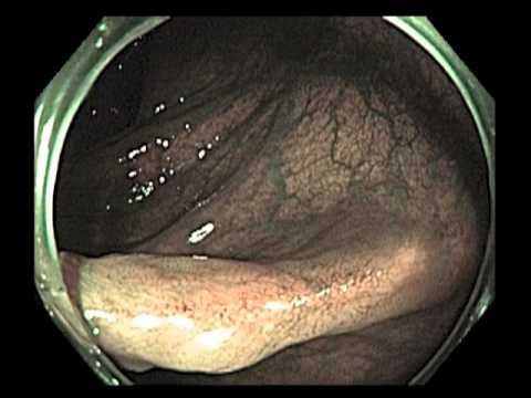 Scar After Resection of a Large Polyp