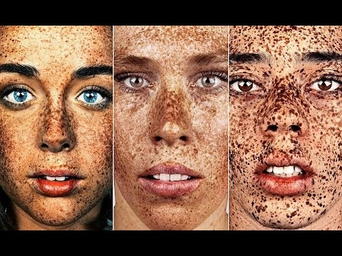 Freckles sa Penza