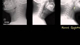Epiglottitis: Diagnosis and Treatment