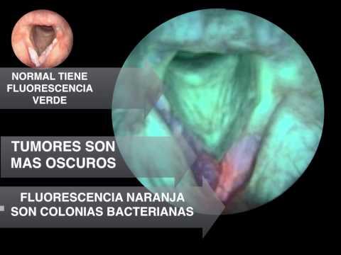 Papilloma virus in man