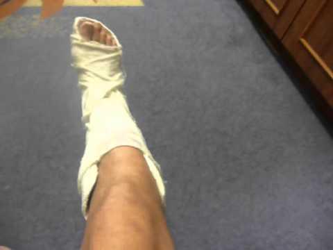 Чем лечить боли в суставах и мышцах ног