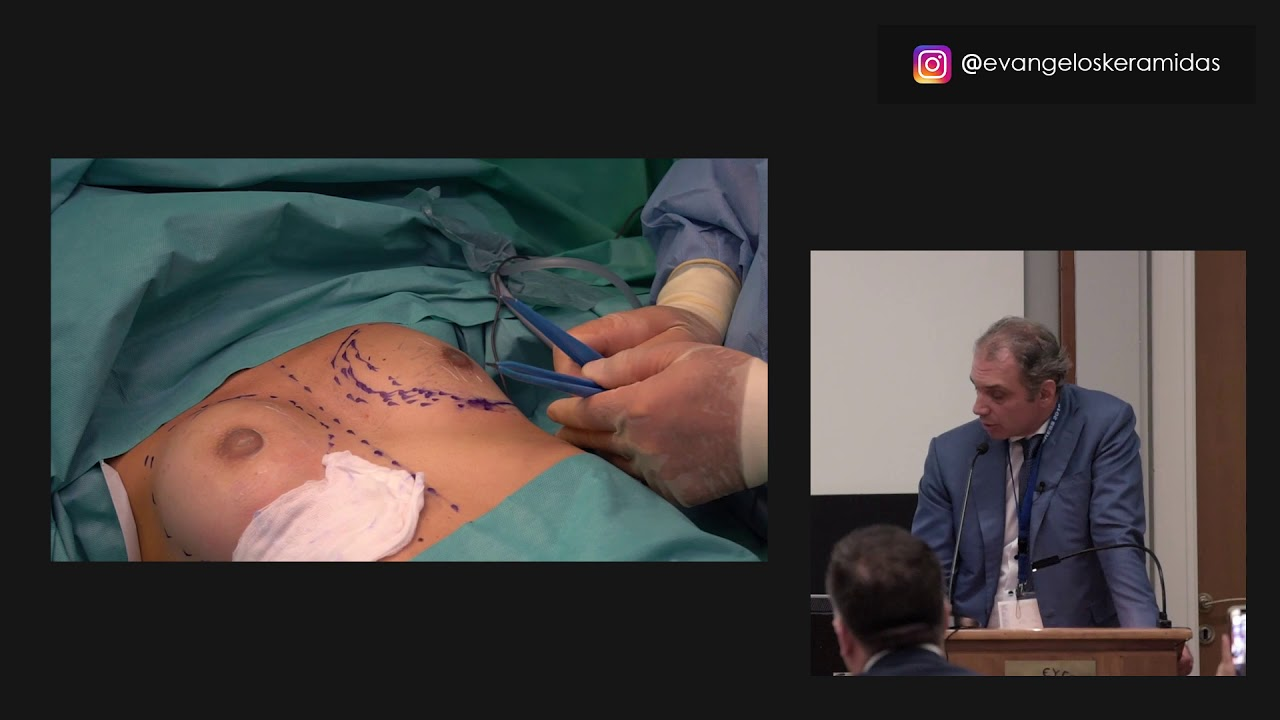 1ο  Βραβείο - 13ο Πανελλήνιο Συνέδριο Πλαστικής Επανορθωτικής & Αισθητικής Χειρουργικής