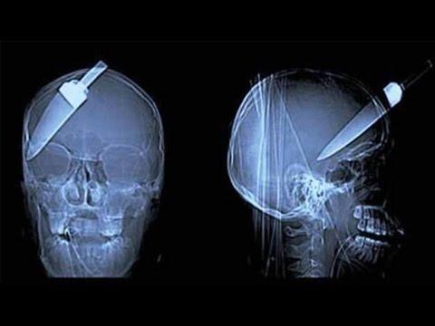 Dünyanın En Sıradışı 15 Röntgen Filmi
