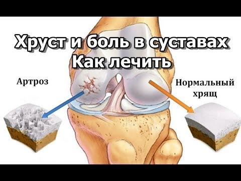 Хруст и боль в суставах - Как лечить