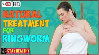 11 Natural Treatment for Ringworm