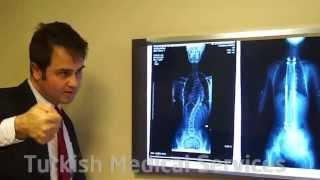Ортопедия и травматология. Операции на позвоночнике при сколиозе в Турции. Компас здоровья № 11.