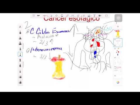 Adenoma da próstata, impotência