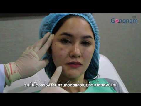Smart Beauty Smart GangNamClinic