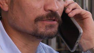 Video: Facial Hair Transplants For Men