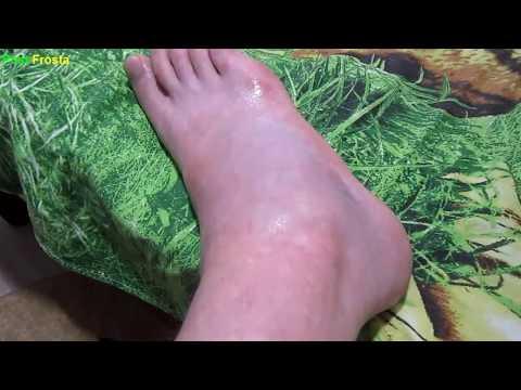 Травма голеностопа, повреждение связок
