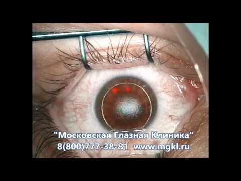 Глазами человека с плохим зрением